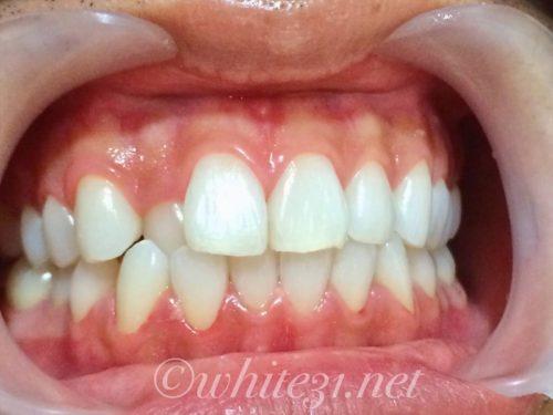歯列不正W後