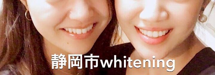 静岡市 ホワイトニング
